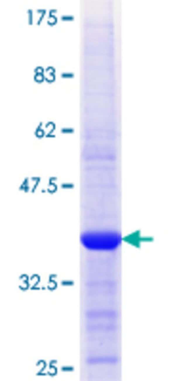 AbnovaHuman APPL2 Partial ORF (NP_060641.2, 174 a.a. - 273 a.a.) Recombinant