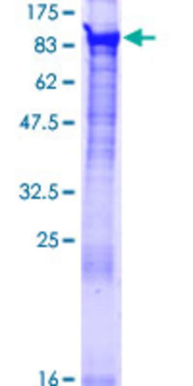 AbnovaHuman BBS7 Full-length ORF (NP_789794.1, 1 a.a. - 715 a.a.) Recombinant