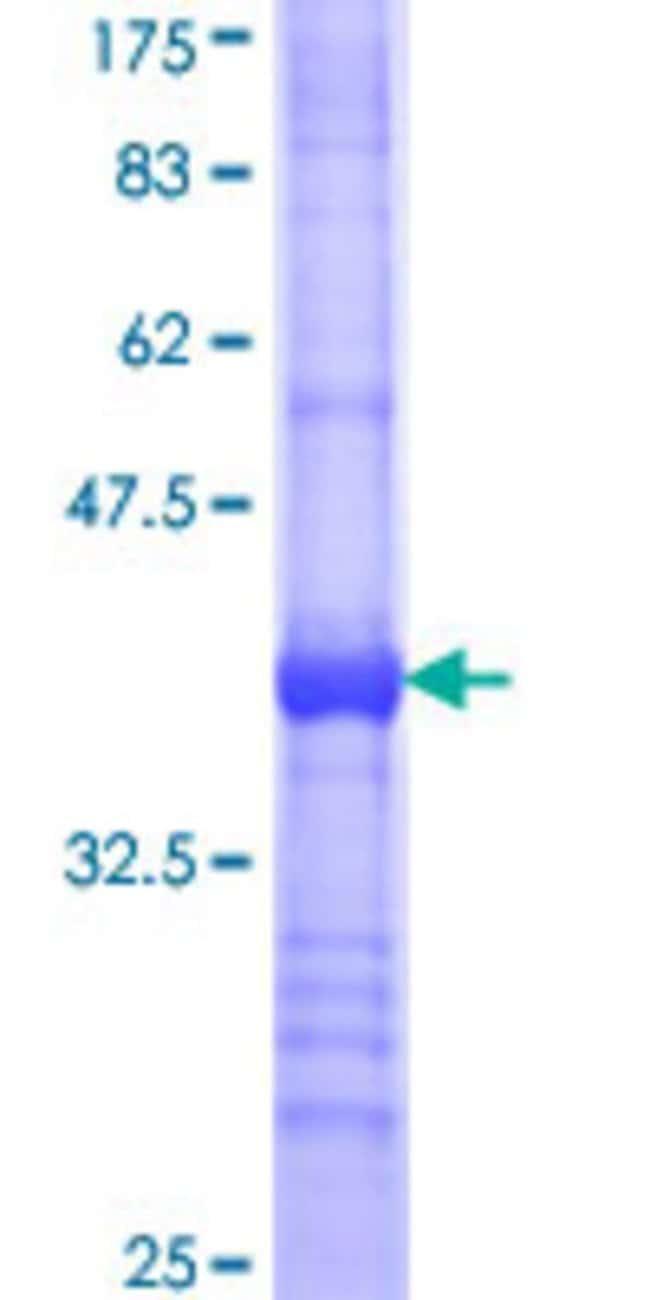 AbnovaHuman BBS7 Partial ORF (NP_060660, 574 a.a. - 672 a.a.) Recombinant