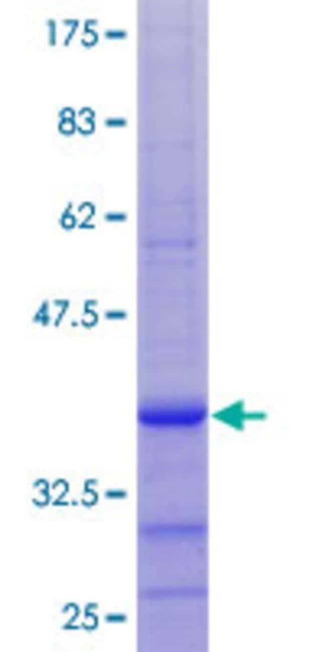 AbnovaHuman RCBTB1 Partial ORF (NP_060661.3, 2 a.a. - 90 a.a.) Recombinant