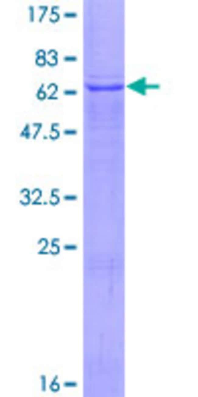 AbnovaHuman TMLHE Full-length ORF (AAH25269.1, 1 a.a. - 376 a.a.) Recombinant
