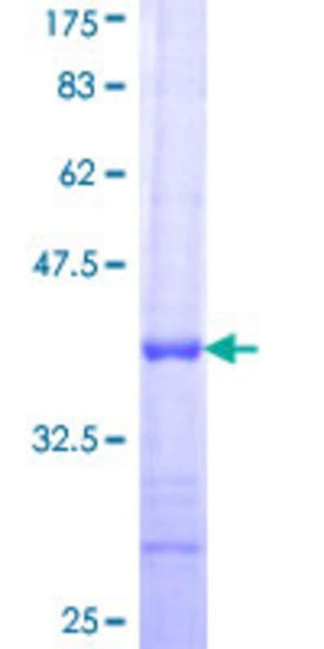 AbnovaHuman TMLHE Partial ORF (NP_060666, 2 a.a. - 100 a.a.) Recombinant