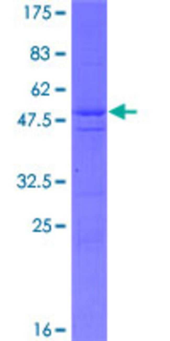 AbnovaHuman LRRC20 Full-length ORF (NP_997002.1, 1 a.a. - 184 a.a.) Recombinant