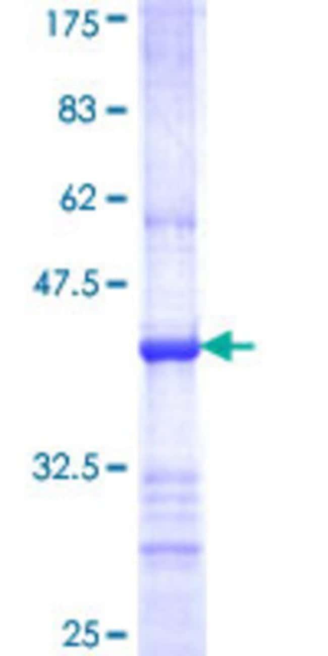AbnovaHuman TRIM62 Partial ORF (NP_060677, 376 a.a. - 475 a.a.) Recombinant