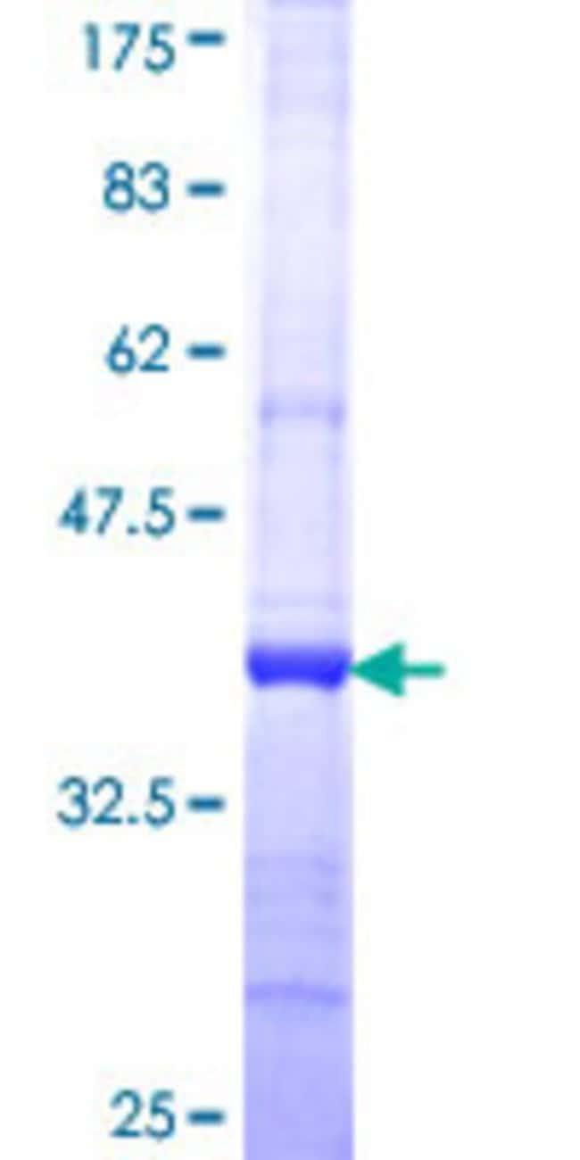 AbnovaHuman FLJ10808 Partial ORF (NP_060697, 962 a.a. - 1051 a.a.) Recombinant