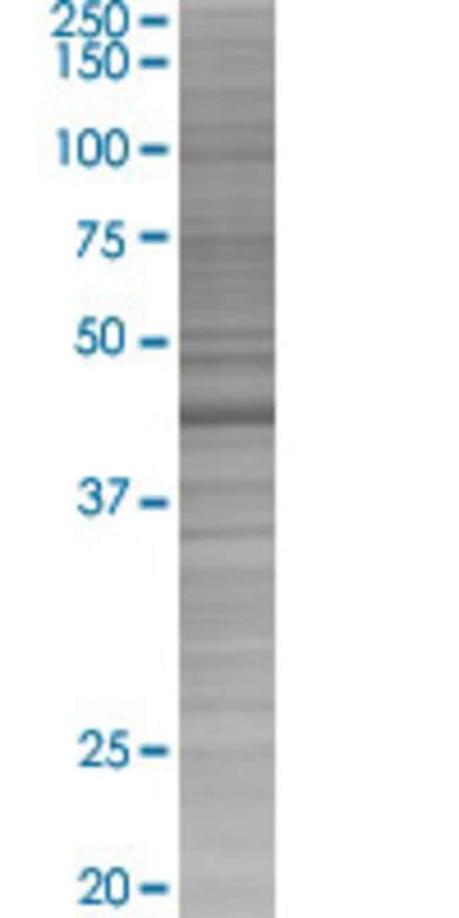 AbnovaASXL2 293T Cell Transient Overexpression Lysate (Denatured) (T03)