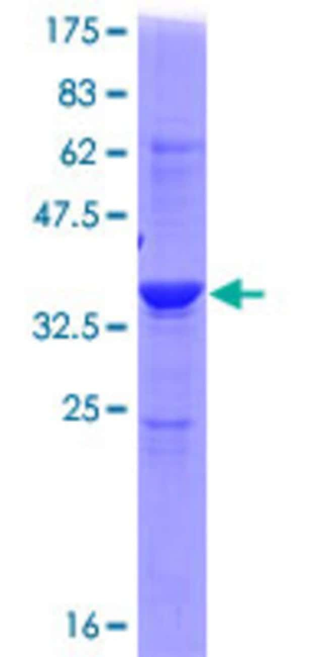AbnovaHuman ADI1 Full-length ORF (NP_060739.1, 1 a.a. - 179 a.a.) Recombinant