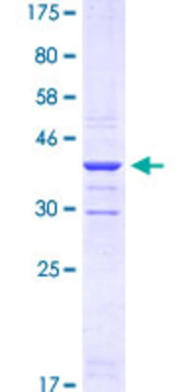 AbnovaHuman PGM2 Partial ORF (AAH10087.1, 1 a.a. - 90 a.a.) Recombinant