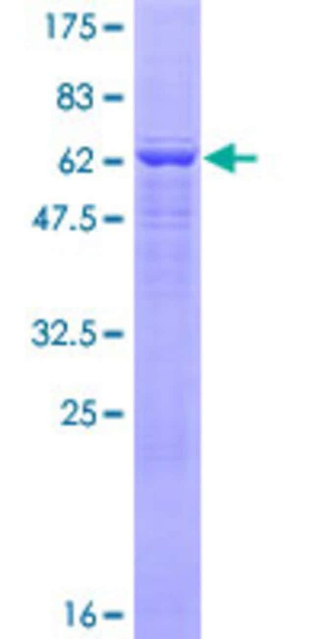 AbnovaHuman FLJ10986 Full-length ORF (NP_060761.2, 1 a.a. - 439 a.a.) Recombinant