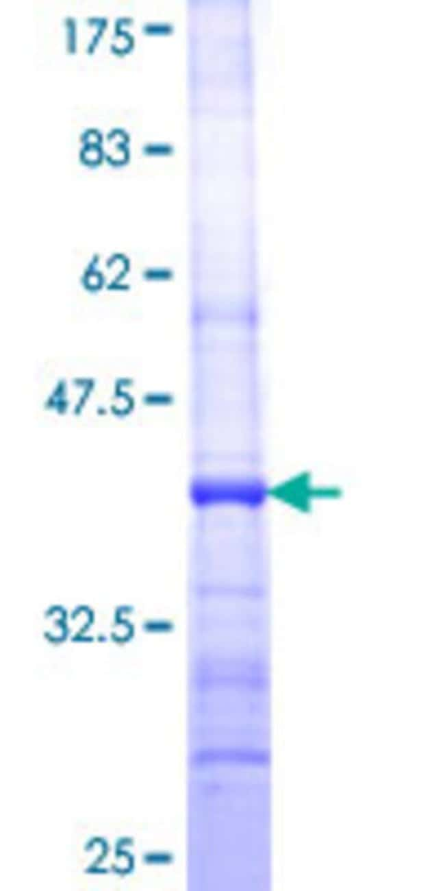 Abnova™Human FLJ10986 Partial ORF (NP_060761, 1 a.a. - 99 a.a.) Recombinant Protein with GST-tag at N-terminal 25μg Abnova™Human FLJ10986 Partial ORF (NP_060761, 1 a.a. - 99 a.a.) Recombinant Protein with GST-tag at N-terminal