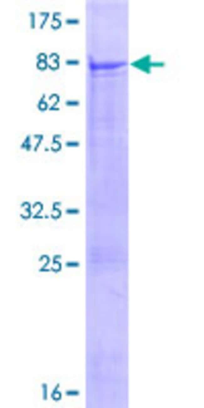 Abnova™Human QRSL1 Full-length ORF (AAH06084.1, 1 a.a. - 528 a.a.) Recombinant Protein with GST-tag at N-terminal 25μg Abnova™Human QRSL1 Full-length ORF (AAH06084.1, 1 a.a. - 528 a.a.) Recombinant Protein with GST-tag at N-terminal