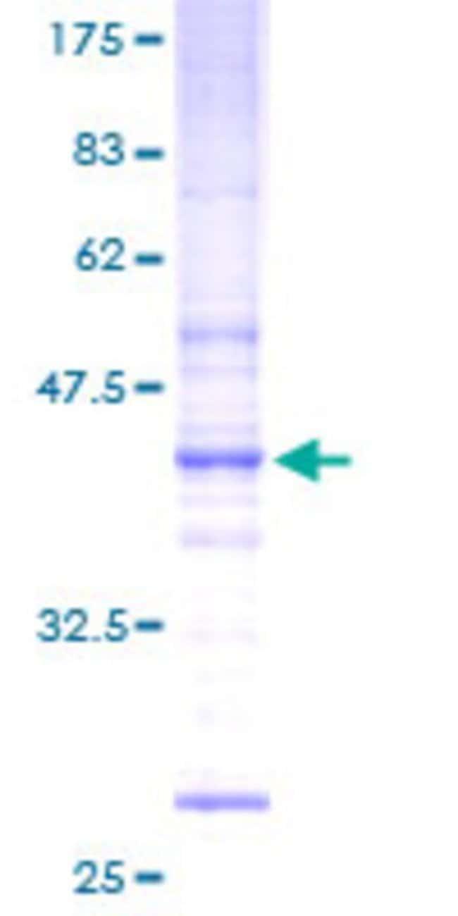 AbnovaHuman FLJ11011 Full-length ORF (AAH10900, 1 a.a. - 159 a.a.) Recombinant
