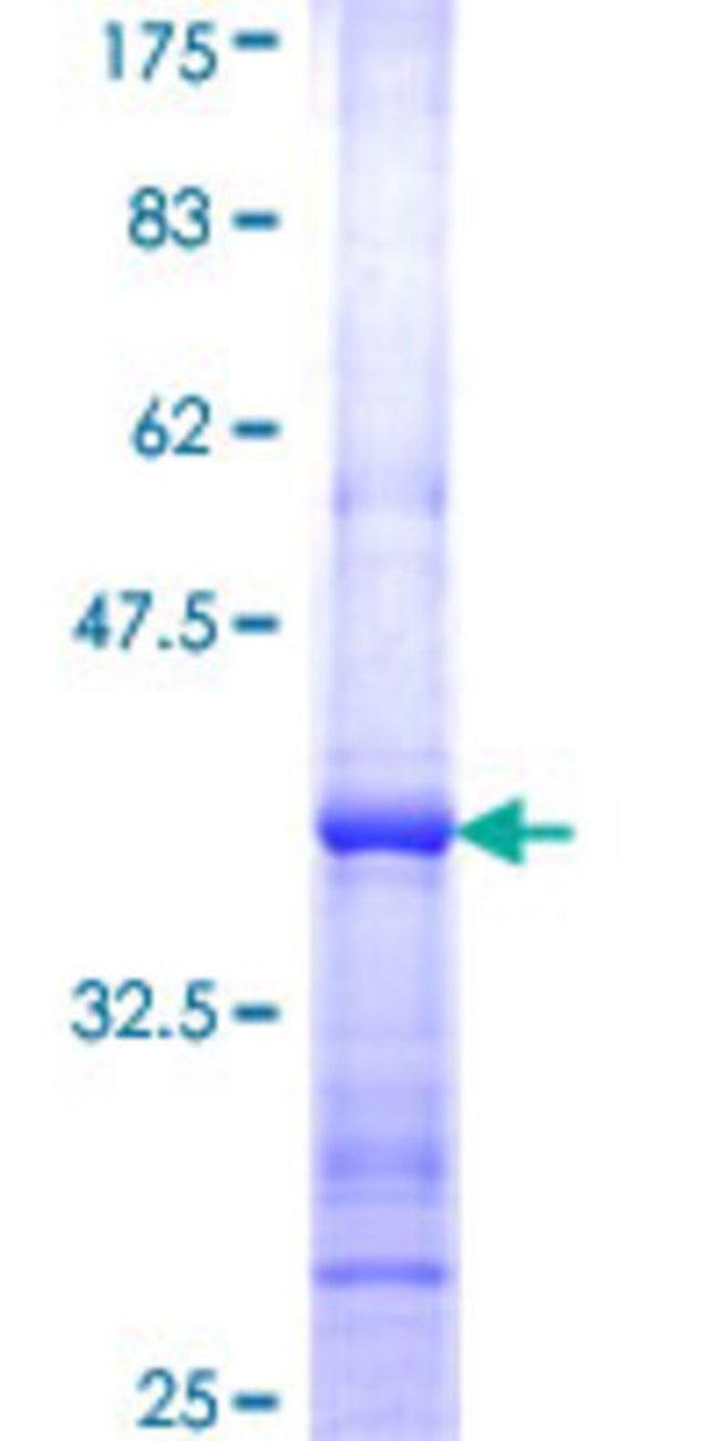 AbnovaHuman FLJ11011 Partial ORF (NP_001001481, 17 a.a. - 112 a.a.) Recombinant