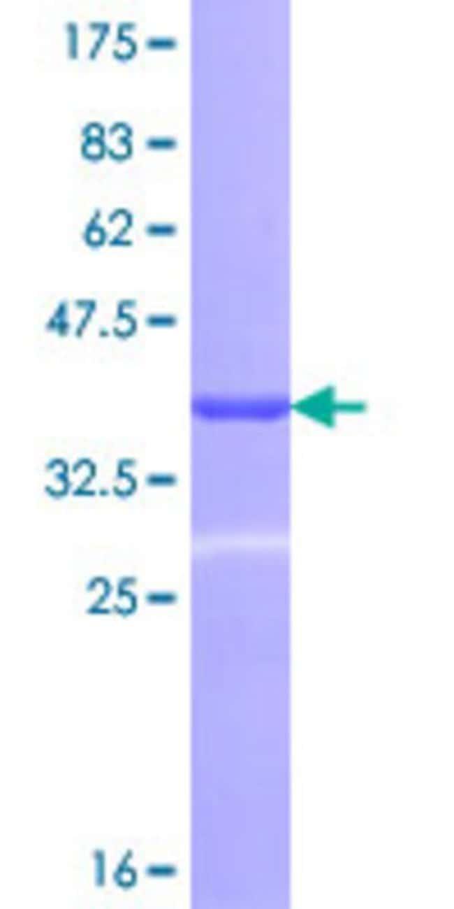 AbnovaHuman RHOT1 Partial ORF (NP_060777, 483 a.a. - 580 a.a.) Recombinant