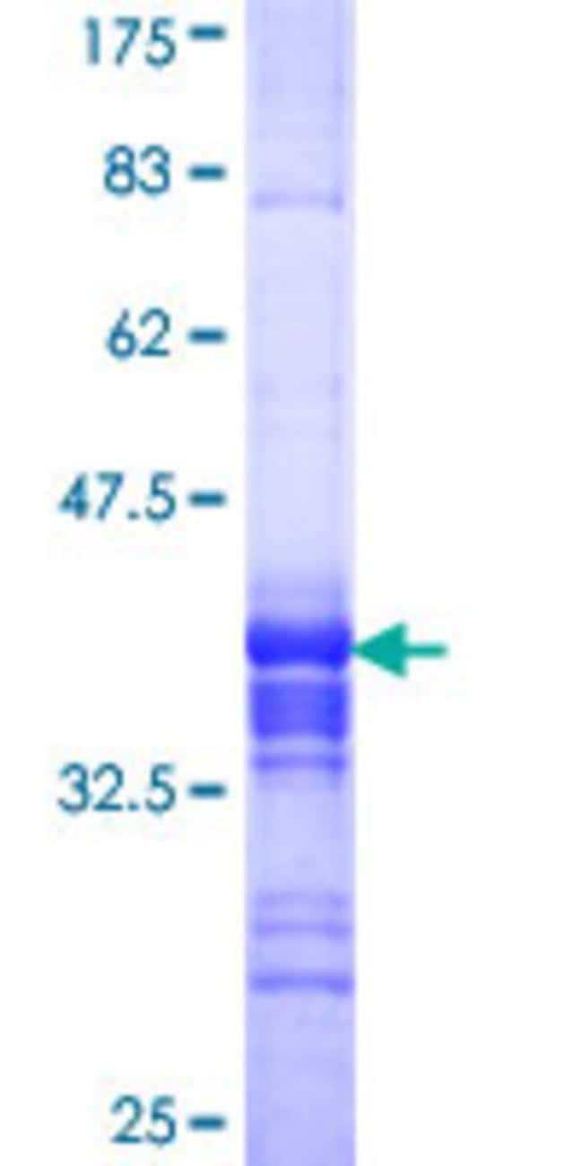 Abnova™Human BRF2 Partial ORF (NP_060780, 1 a.a. - 100 a.a.) Recombinant Protein with GST-tag at N-terminal 10μg Abnova™Human BRF2 Partial ORF (NP_060780, 1 a.a. - 100 a.a.) Recombinant Protein with GST-tag at N-terminal