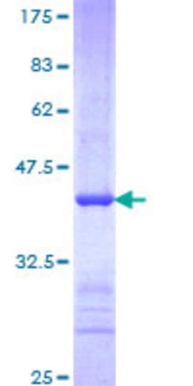 AbnovaHuman FBXW7 Partial ORF (NP_361014, 599 a.a. - 707 a.a.) Recombinant