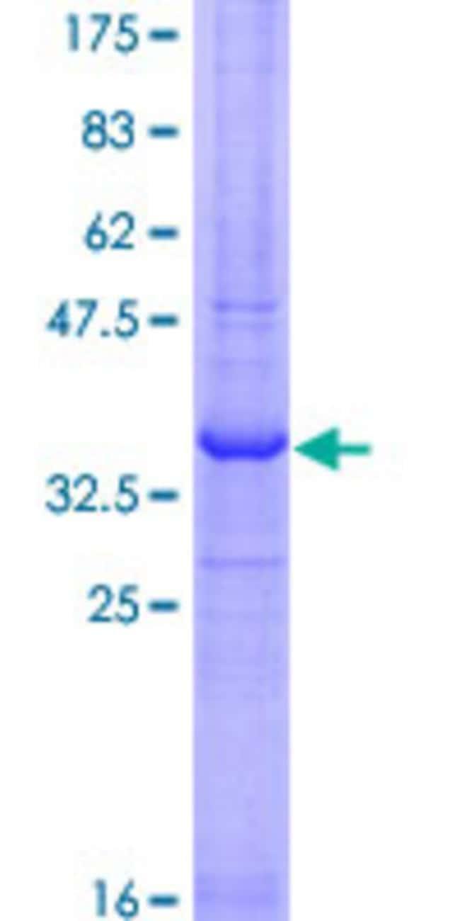 AbnovaHuman RNF121 Partial ORF (NP_060790.2, 193 a.a. - 301 a.a.) Recombinant
