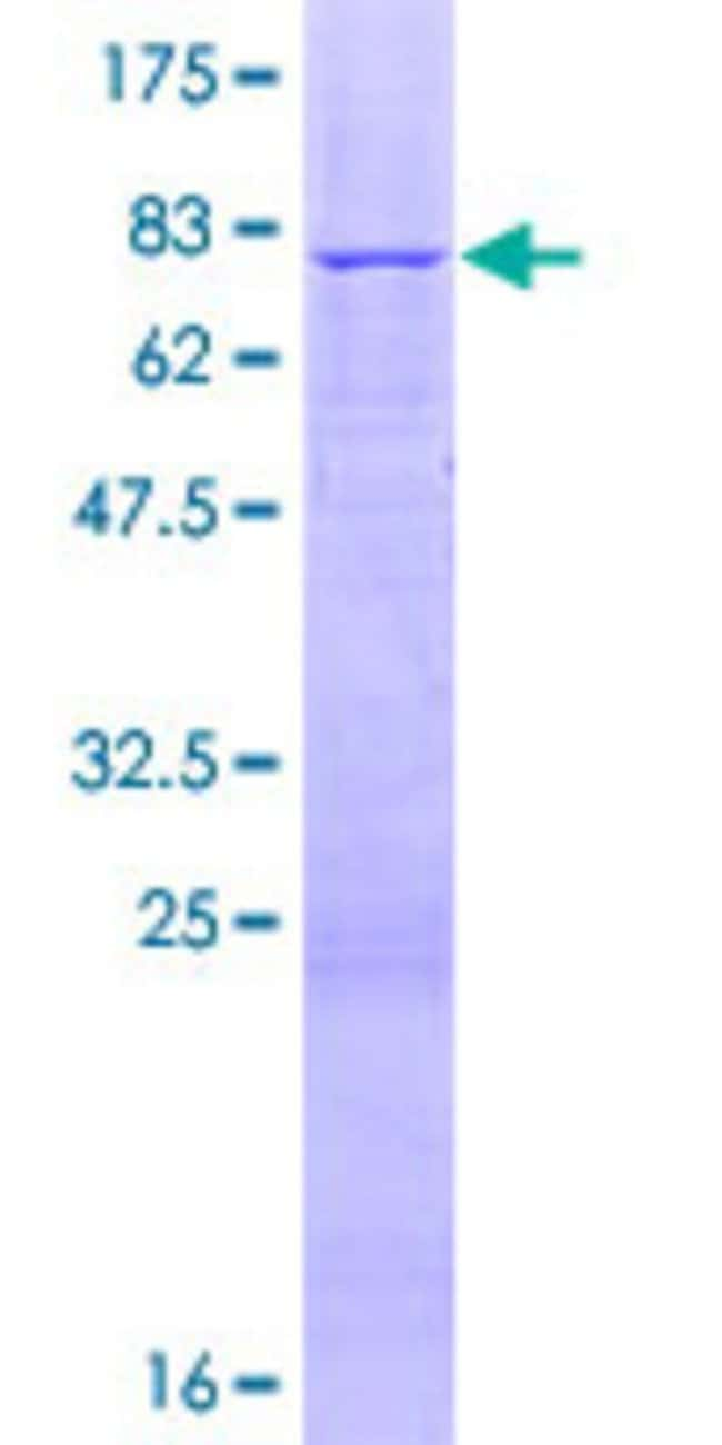 Abnova™Human RSAD1 Full-length ORF (AAH50538.1, 1 a.a. - 442 a.a.) Recombinant Protein with GST-tag at N-terminal 10μg Abnova™Human RSAD1 Full-length ORF (AAH50538.1, 1 a.a. - 442 a.a.) Recombinant Protein with GST-tag at N-terminal