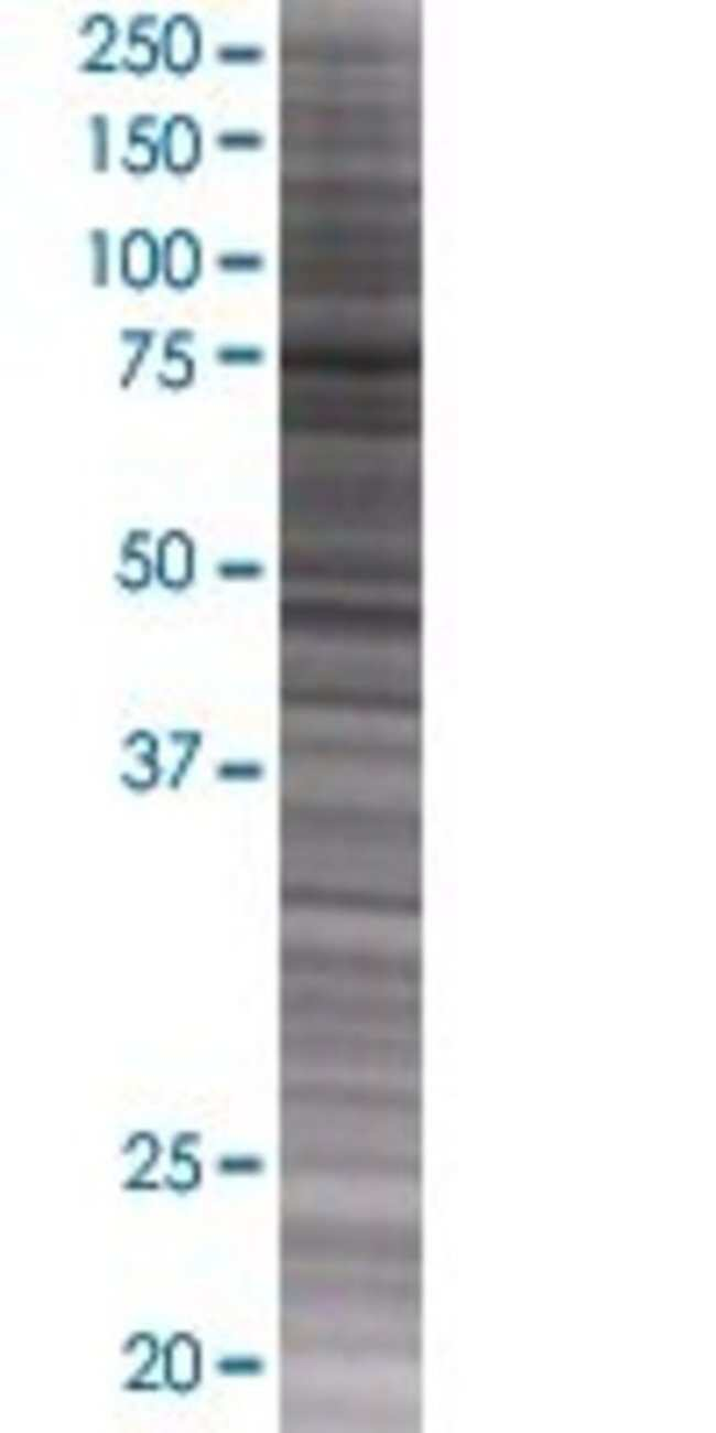 AbnovaABCF3 293T Cell Transient Overexpression Lysate (Denatured) 100μL:Protein