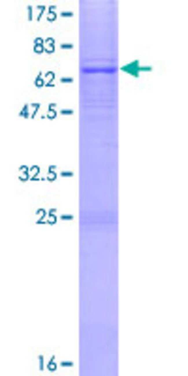AbnovaHuman AGPAT5 Full-length ORF (NP_060831.2, 1 a.a. - 364 a.a.) Recombinant
