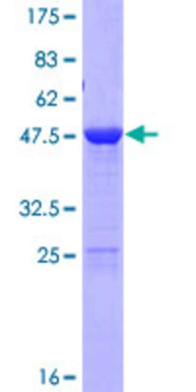 AbnovaHuman LIN7C Full-length ORF (NP_060832.1, 1 a.a. - 197 a.a.) Recombinant