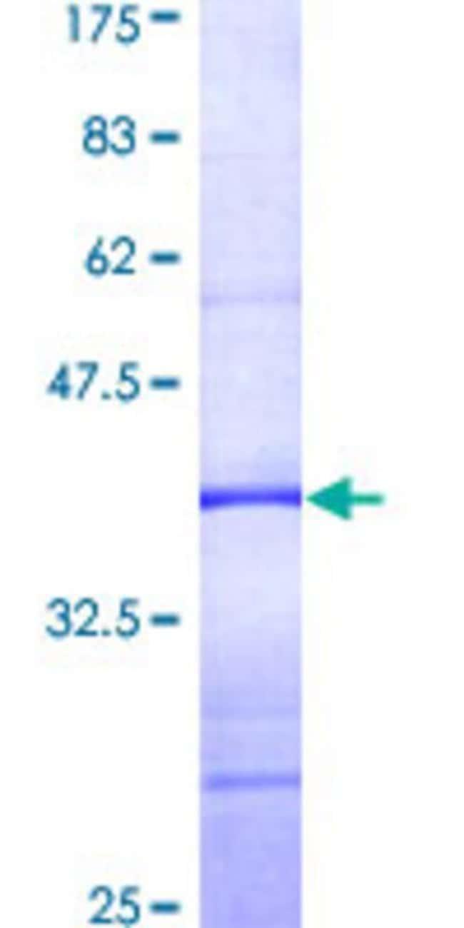AbnovaHuman PLCXD1 Partial ORF (AAH05028, 224 a.a. - 323 a.a.) Recombinant