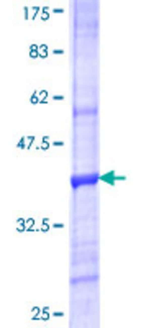 AbnovaHuman VNN3 Partial ORF (NP_060869.2, 175 a.a. - 274 a.a.) Recombinant