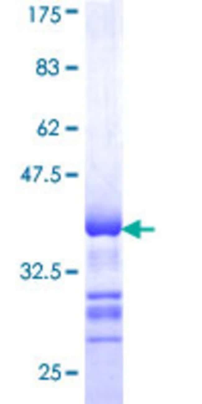 AbnovaHuman STK32B Partial ORF (AAH38238, 314 a.a. - 414 a.a.) Recombinant