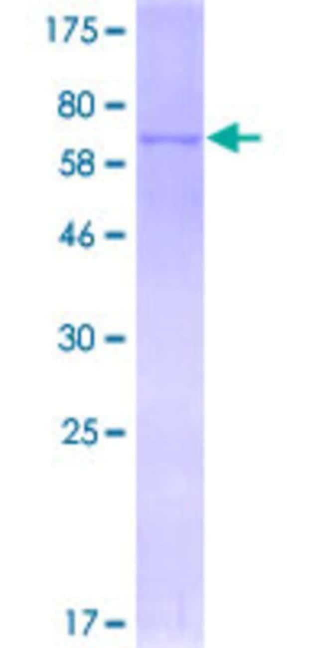 AbnovaHuman STYK1 Full-length ORF (NP_060893.1, 1 a.a. - 422 a.a.) Recombinant