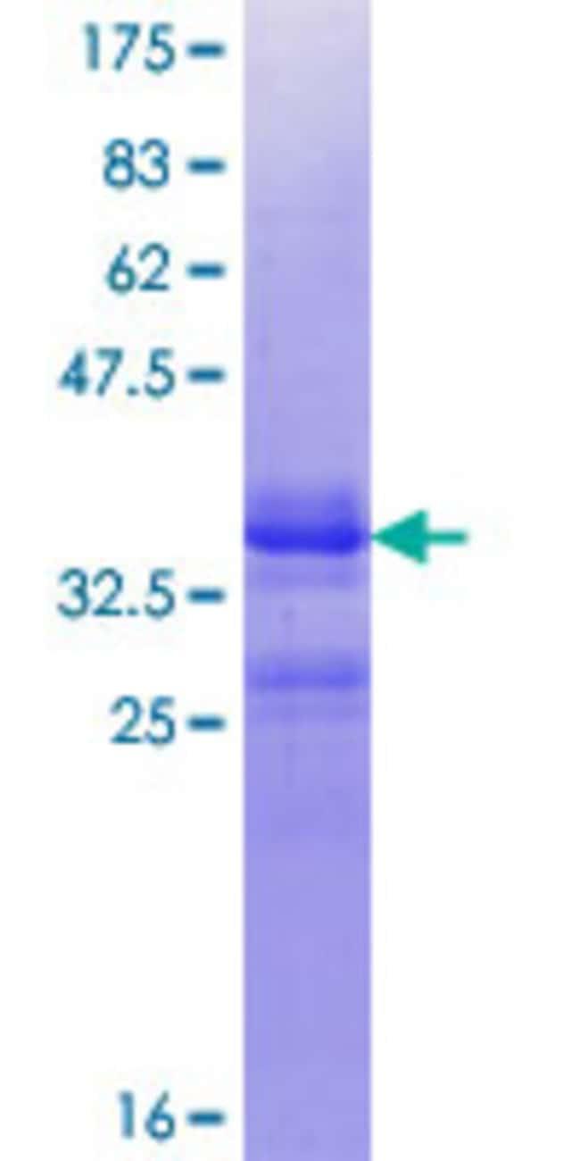 AbnovaHuman LGR4 Partial ORF (NP_001832.1, 852 a.a. - 950 a.a.) Recombinant