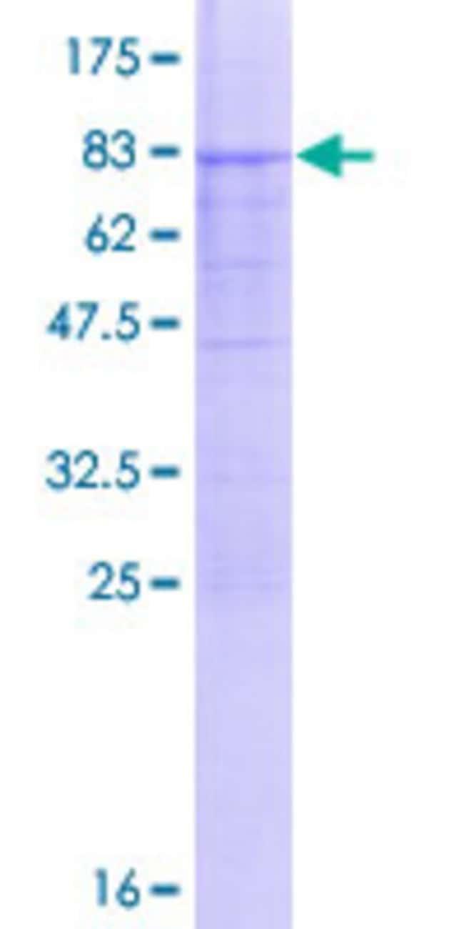 AbnovaHuman PPP4R1L Full-length ORF (AAI00980.1, 1 a.a. - 415 a.a.) Recombinant