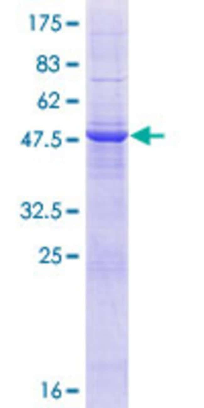 Abnova™Human TMCO6 Full-length ORF (AAH09618.1, 1 a.a. - 253 a.a.) Recombinant Protein with GST-tag at N-terminal 25μg Abnova™Human TMCO6 Full-length ORF (AAH09618.1, 1 a.a. - 253 a.a.) Recombinant Protein with GST-tag at N-terminal