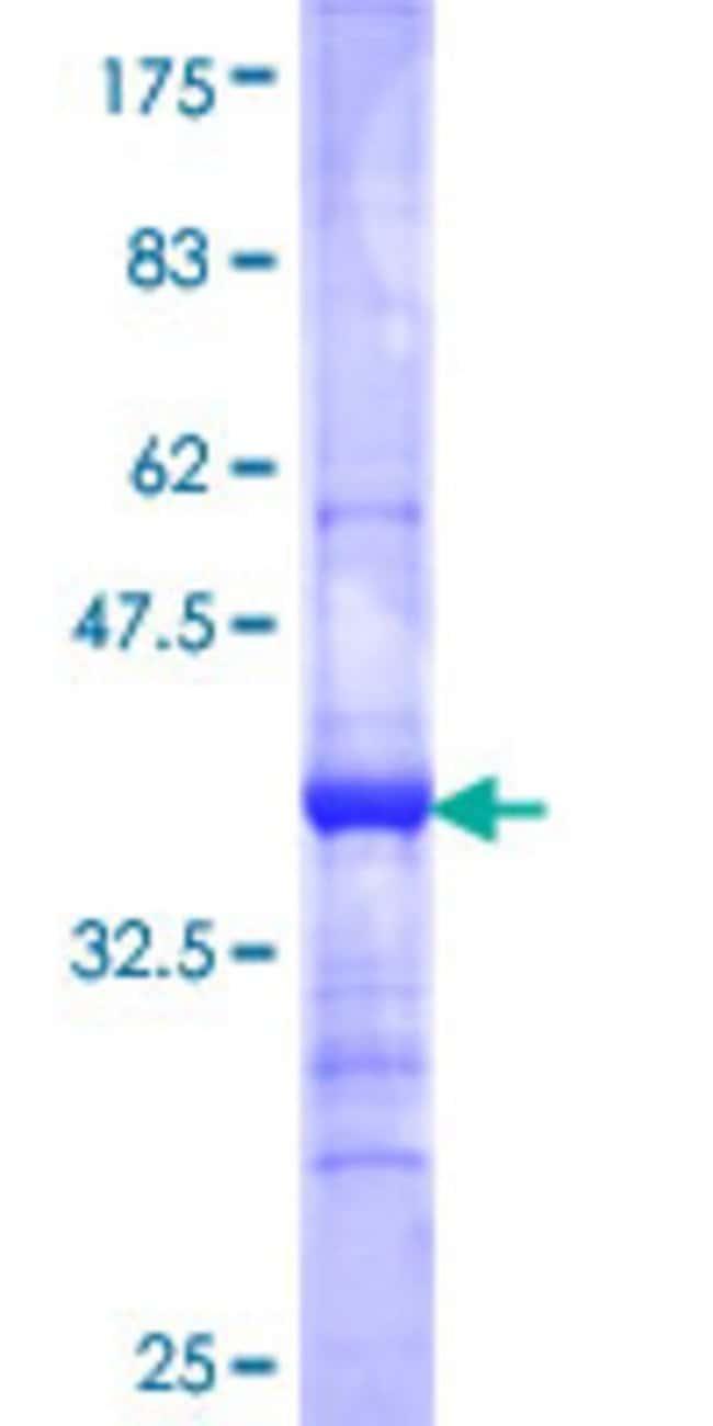AbnovaHuman STRADB Partial ORF (NP_061041, 1 a.a. - 95 a.a.) Recombinant