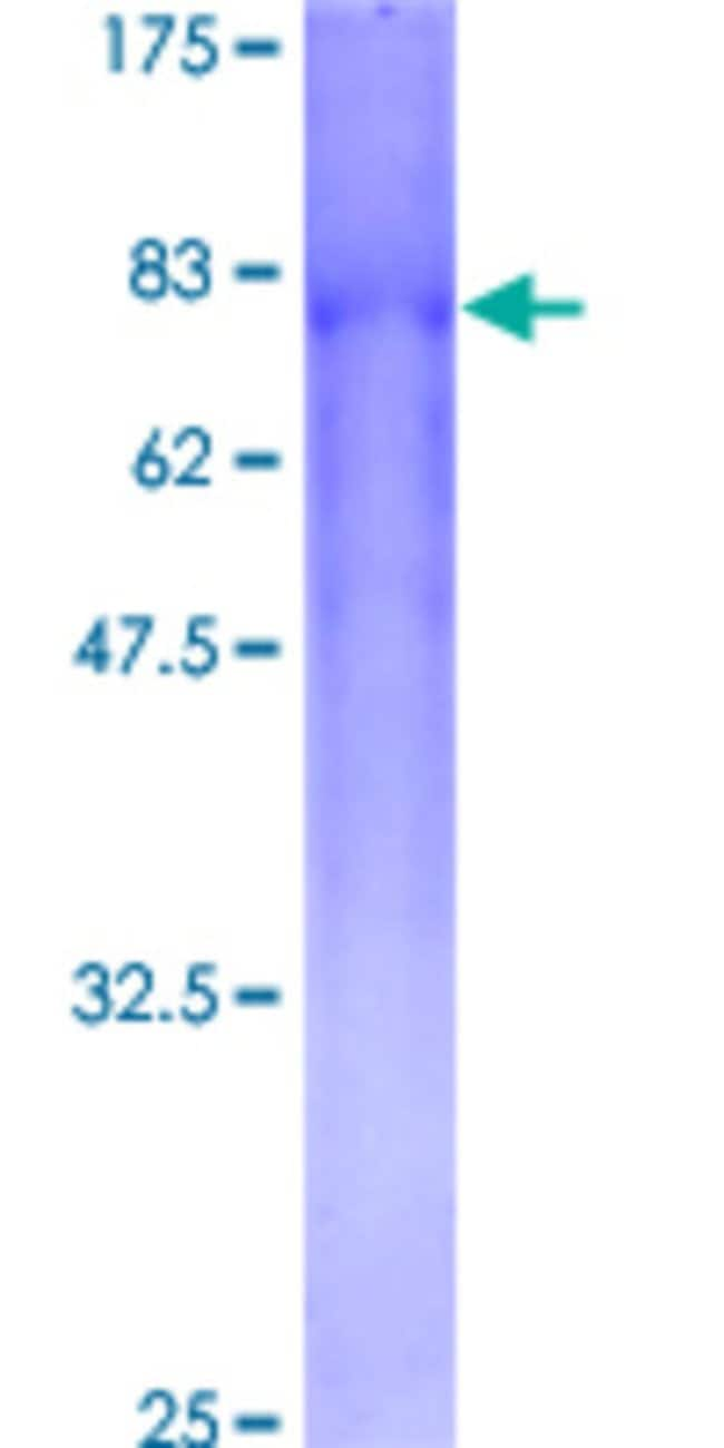 Abnova™Human GALNACT-2 Full-length ORF (AAH30268, 1 a.a. - 542 a.a.) Recombinant Protein with GST-tag at N-terminal 25μg Abnova™Human GALNACT-2 Full-length ORF (AAH30268, 1 a.a. - 542 a.a.) Recombinant Protein with GST-tag at N-terminal
