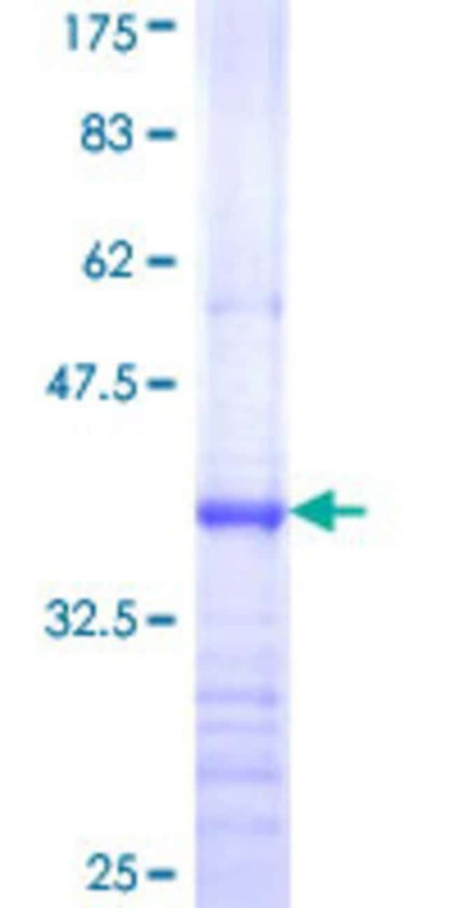 Abnova™Human ETNK1 Partial ORF (NP_061108, 133 a.a. - 228 a.a.) Recombinant Protein with GST-tag at N-terminal 10μg Abnova™Human ETNK1 Partial ORF (NP_061108, 133 a.a. - 228 a.a.) Recombinant Protein with GST-tag at N-terminal