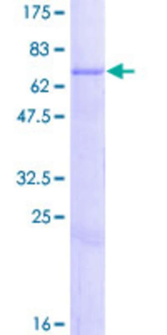 AbnovaHuman CHST12 Full-length ORF (NP_061111.1, 1 a.a. - 414 a.a.) Recombinant