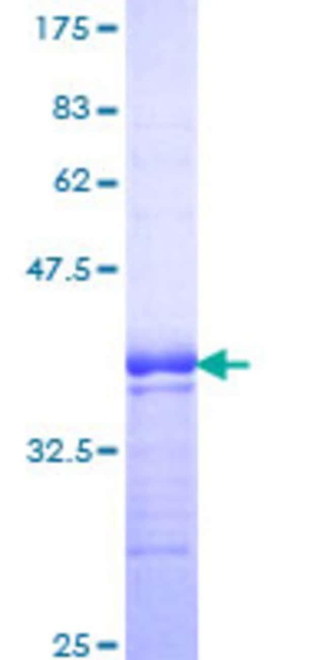 AbnovaHuman TNFRSF19 Partial ORF (NP_061117, 30 a.a. - 119 a.a.) Recombinant