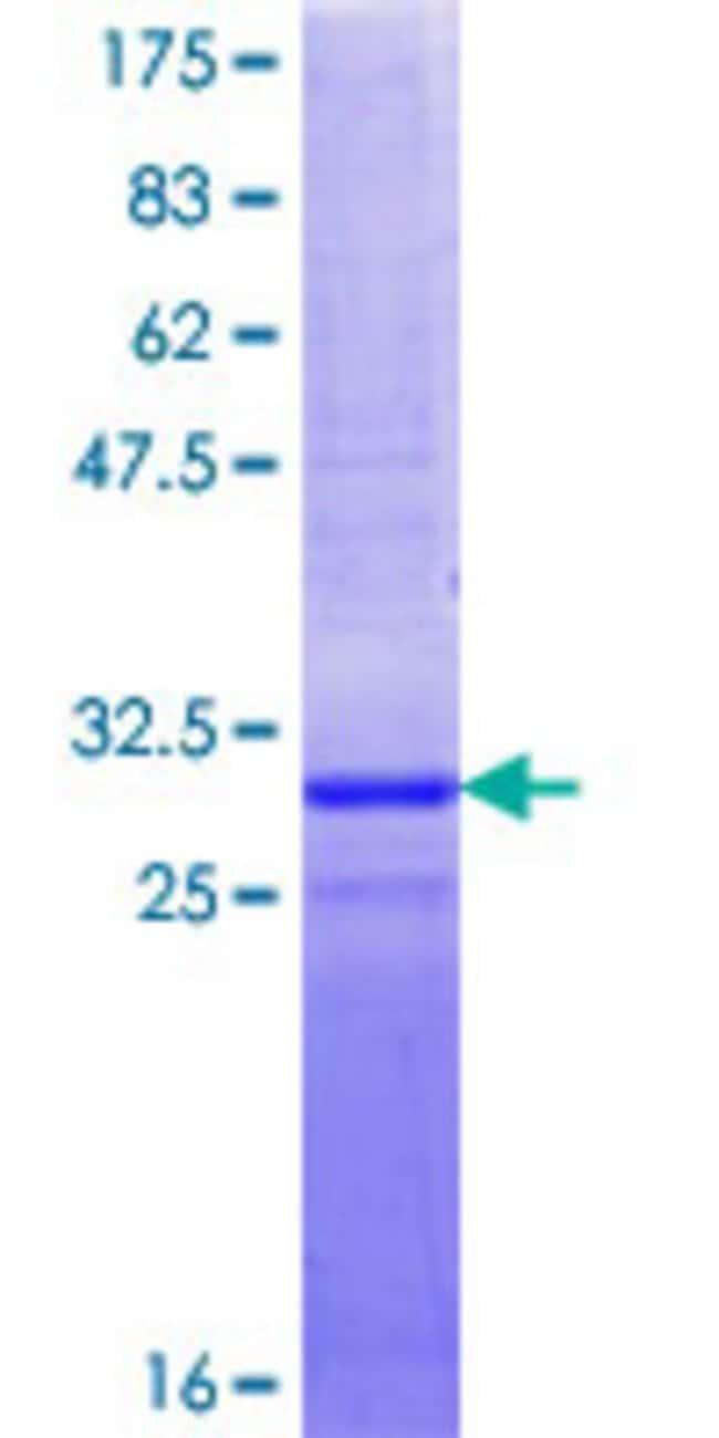 AbnovaHuman NOLA3 Partial ORF (NP_061118.1, 1 a.a. - 64 a.a.) Recombinant