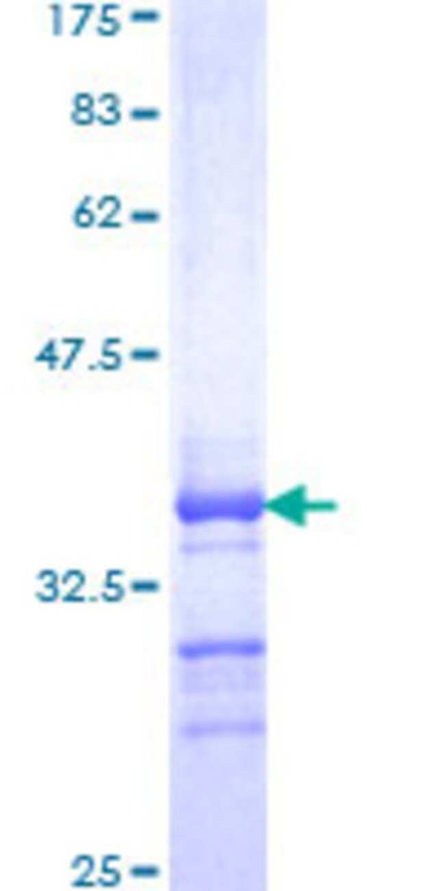 Abnova™Human SNFT Partial ORF (NP_061134, 48 a.a. - 125 a.a.) Recombinant Protein with GST-tag at N-terminal 25μg Abnova™Human SNFT Partial ORF (NP_061134, 48 a.a. - 125 a.a.) Recombinant Protein with GST-tag at N-terminal