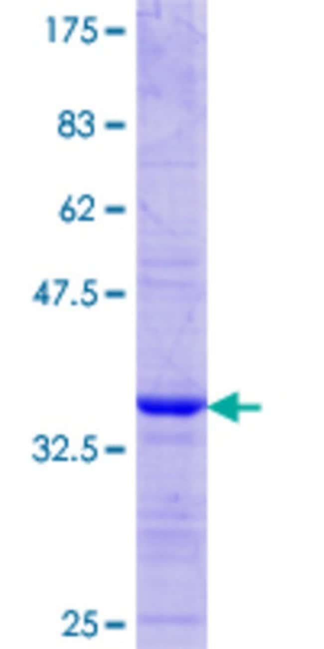 AbnovaHuman DDX43 Partial ORF (NP_061135.1, 2 a.a. - 90 a.a.) Recombinant