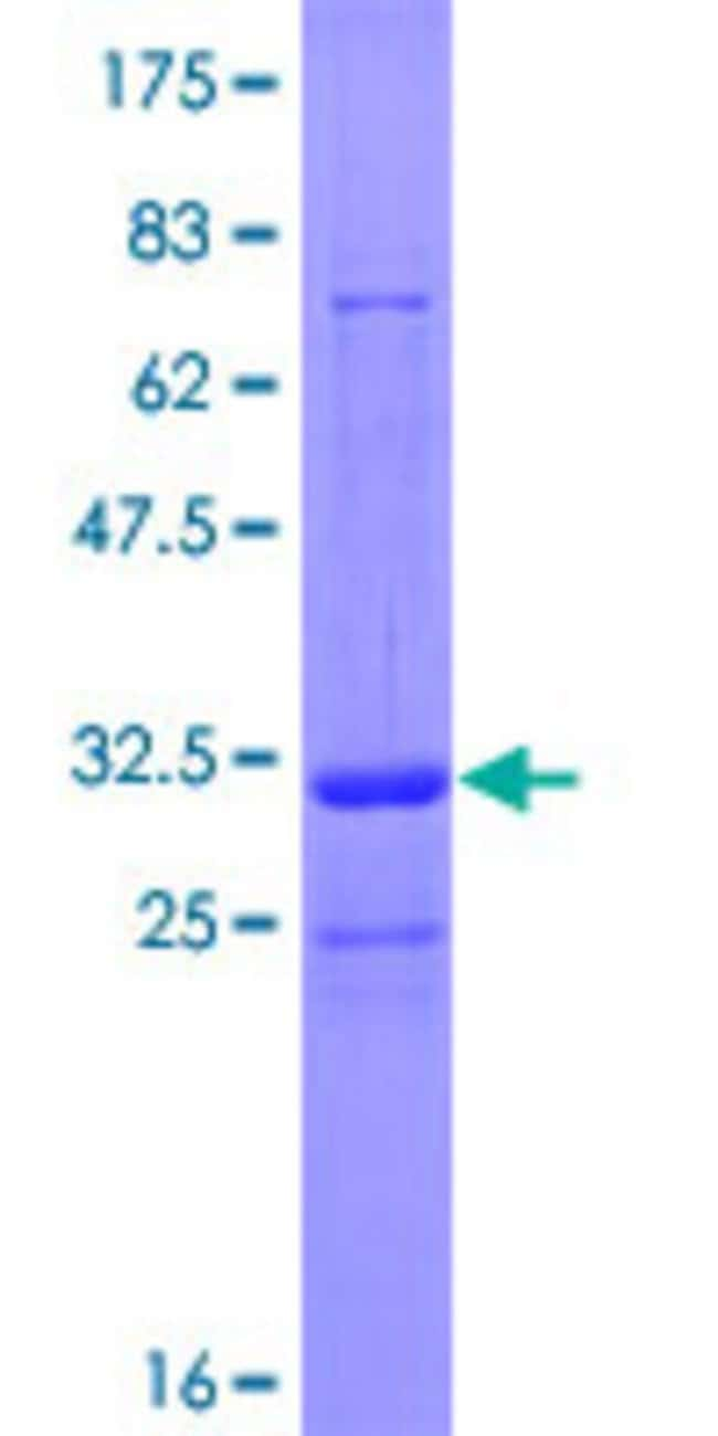Abnova™Human TRIM36 Full-length ORF (NP_001017397.1, 1 a.a. - 60 a.a.) Recombinant Protein with GST-tag at N-terminal 25μg Abnova™Human TRIM36 Full-length ORF (NP_001017397.1, 1 a.a. - 60 a.a.) Recombinant Protein with GST-tag at N-terminal