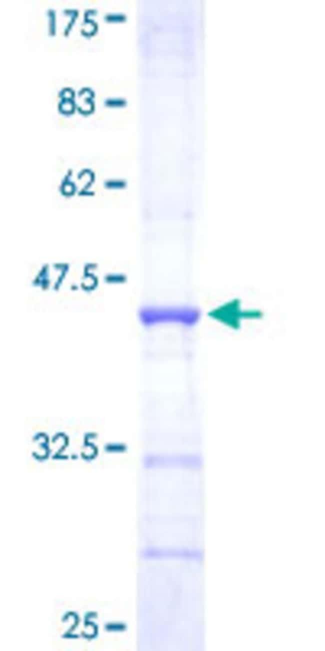 AbnovaHuman TRIM36 Partial ORF (NP_061170, 391 a.a. - 499 a.a.) Recombinant