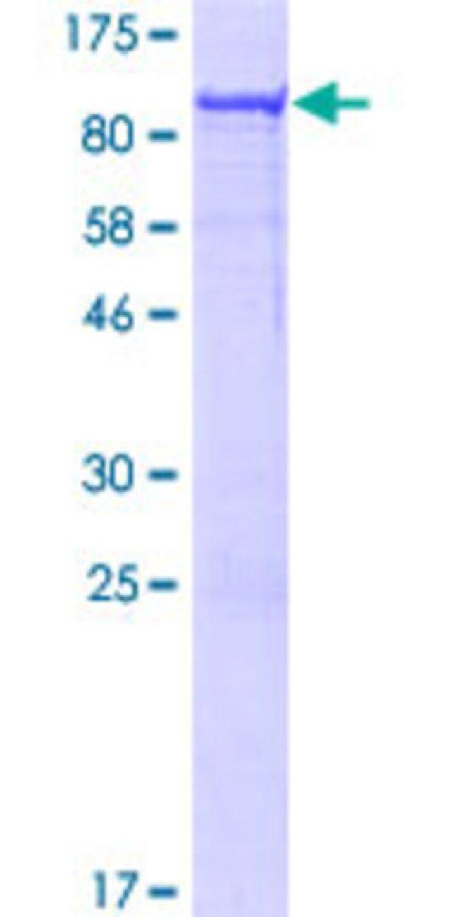 AbnovaHuman CDCA7L Full-length ORF (NP_061189.2, 1 a.a. - 454 a.a.) Recombinant