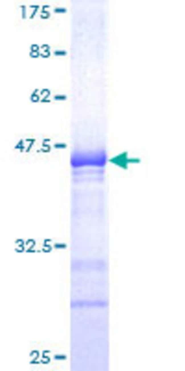 AbnovaHuman SOX6 Partial ORF (NP_201583, 1 a.a. - 109 a.a.) Recombinant