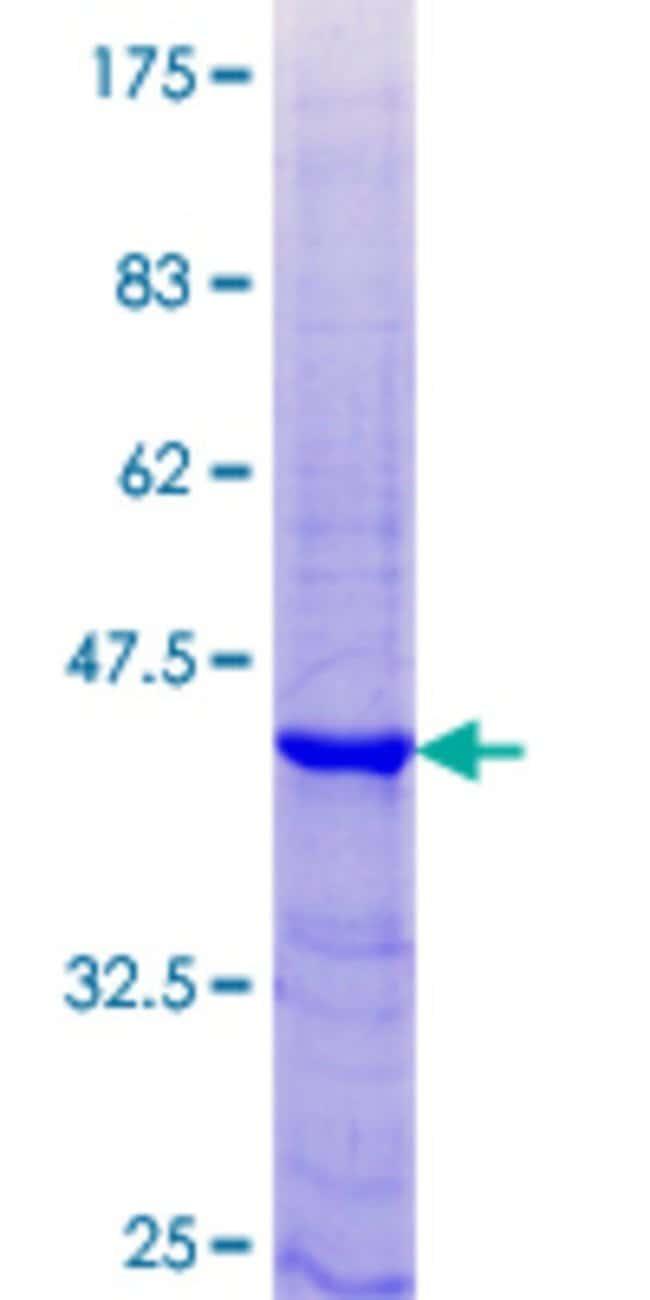 AbnovaHuman KLK15 Full-length ORF (NP_075382.1, 1 a.a. - 121 a.a.) Recombinant