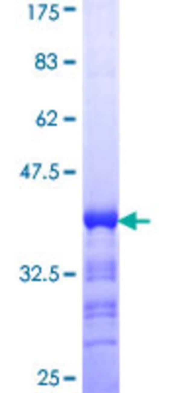 AbnovaHuman CDC42BPG Partial ORF (NP_059995, 1423 a.a. - 1528 a.a.) Recombinant