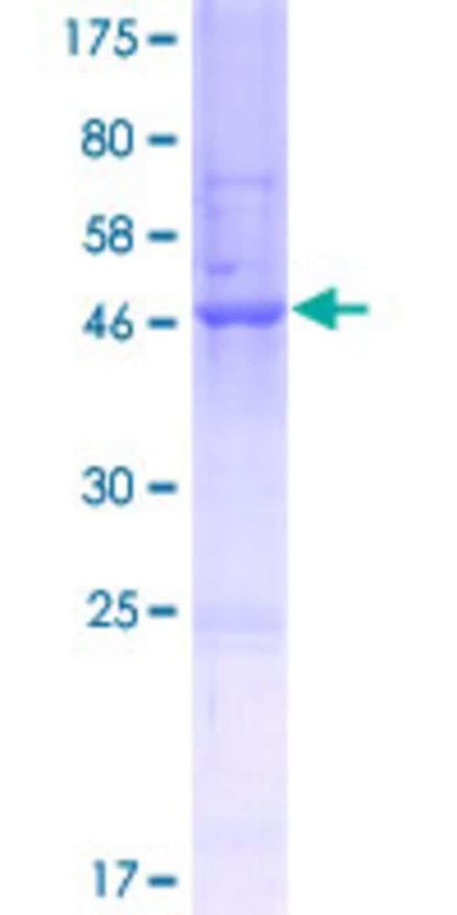AbnovaHuman ANKRD10 Full-length ORF (AAH01727.1, 1 a.a. - 220 a.a.) Recombinant