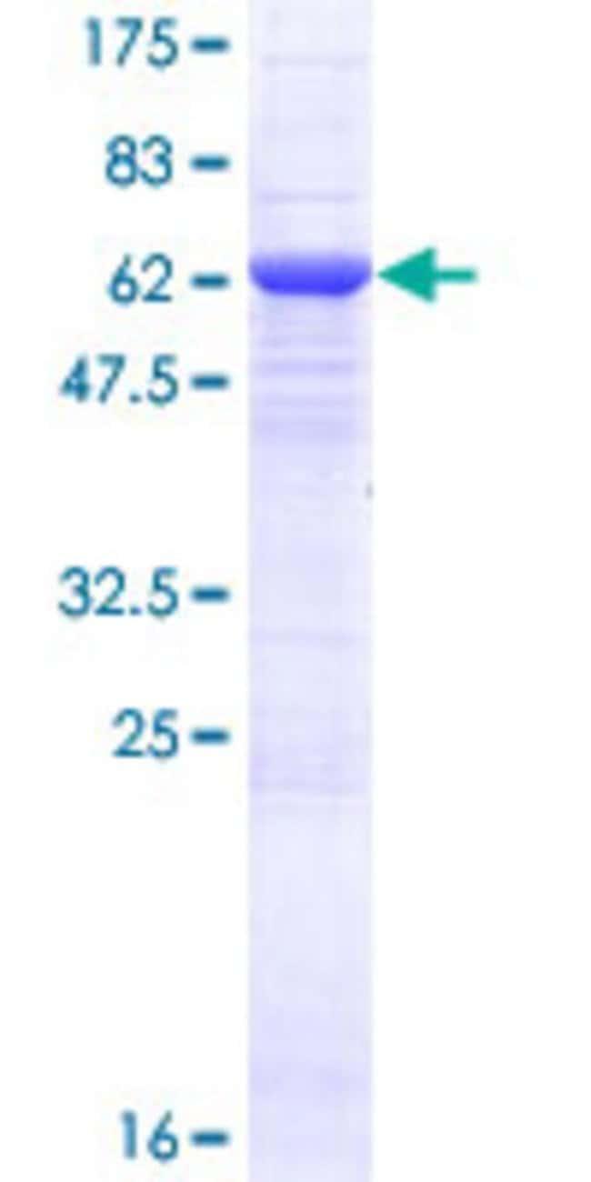 AbnovaHuman CCDC132 Full-length ORF (NP_078829.1, 1 a.a. - 327 a.a.) Recombinant