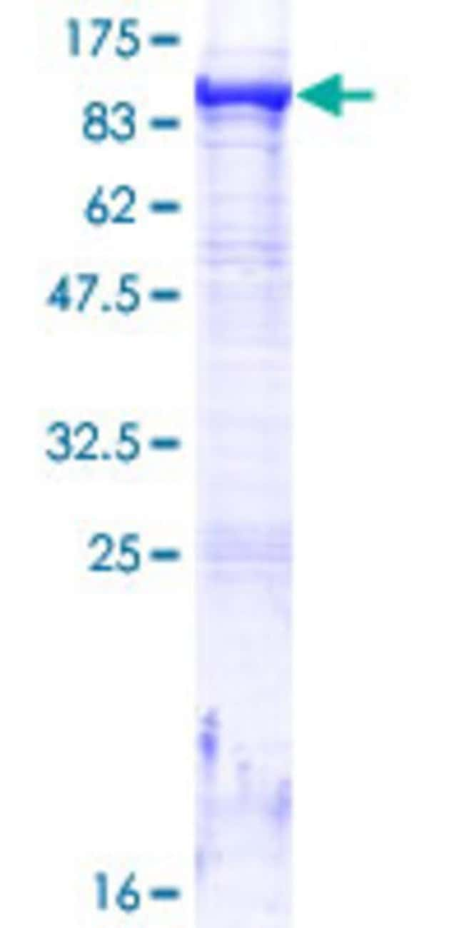 Abnova™Human MTMR8 Full-length ORF (NP_060147.2, 1 a.a. - 704 a.a.) Recombinant Protein with GST-tag at N-terminal 10μg Abnova™Human MTMR8 Full-length ORF (NP_060147.2, 1 a.a. - 704 a.a.) Recombinant Protein with GST-tag at N-terminal
