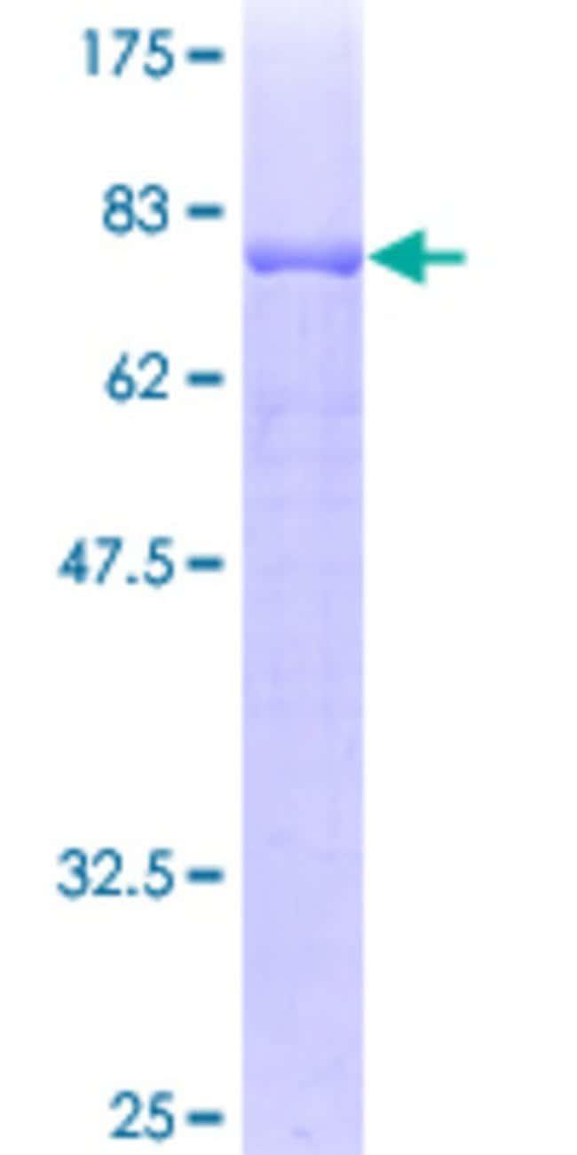 AbnovaHuman TASP1 Full-length ORF (AAH25266, 1 a.a. - 420 a.a.) Recombinant